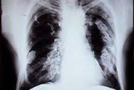 El asbesto mata a 110 mil personas al año