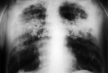 La silicosis encabeza la lista de enfermedades respiratorias de origen laboral en países en desarrollo