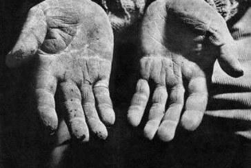 Chile: Cómo cuidar tus manos en el trabajo