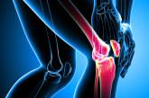 Colombia: La mitad de los pacientes con Artritis Reumatoide sufren discapacidad laboral