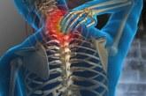España: Las enfermedades musculoesqueléticas cuestan más de 240.000 millones al año
