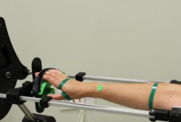 España: Unión de Mutuas aplica la tecnología 3D para las fracturas óseas y lesiones musculares
