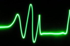 Trabajar demasiado puede hacer que el corazón vaya a ritmo irregular