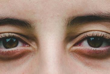 La fatiga visual